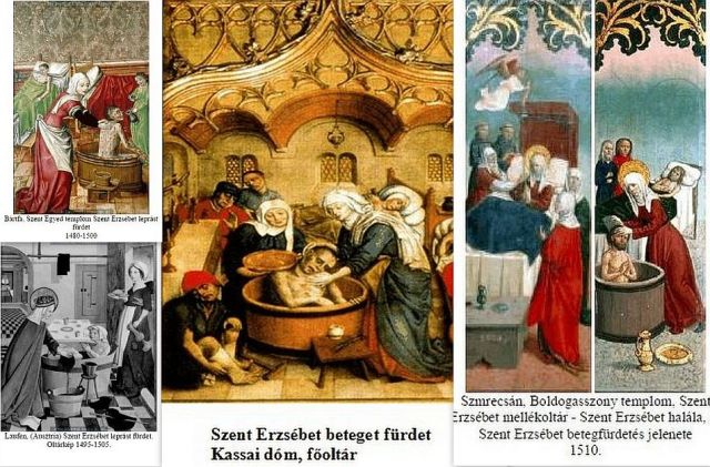 Szt Erzsébet beteget fürdet